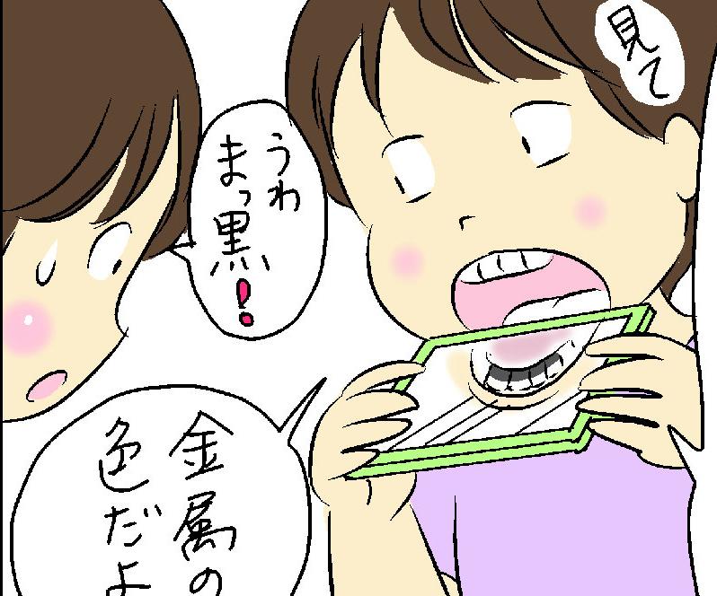 娘の「ママだって受けたほうがいい」にギクッ! 残った歯のために続けたいこと/中島めめ