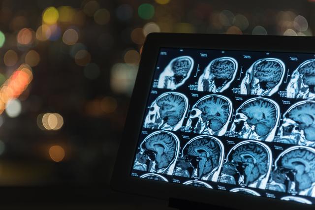 でっかい梅干しだな...医師に示された「僕の脳腫瘍」/僕は、死なない。(44)