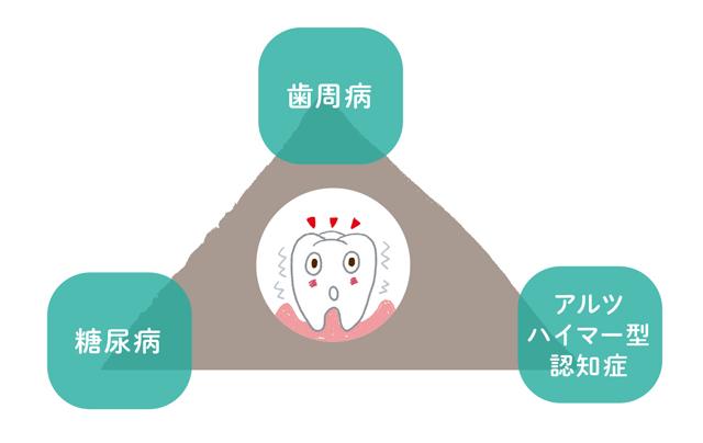 認知症を促進させる要因はこんなにたくさん! 「高血圧」と「血中脂質」、負の連鎖を生む「歯周病」