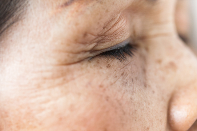 老眼と白内障は万人にセットでやって来ます/老眼