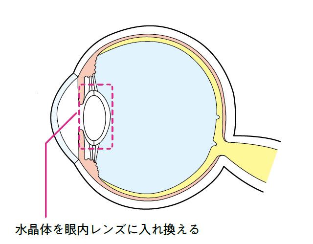 実は、日本で年間130万件以上行われているんです。「白内障手術」の基礎知識