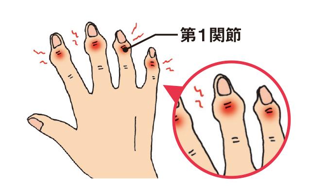 更年期以降の女性に多い!「6つの手指の病気」とは