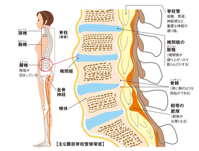 症 こと 脊柱 管 狭窄 やってはいけない