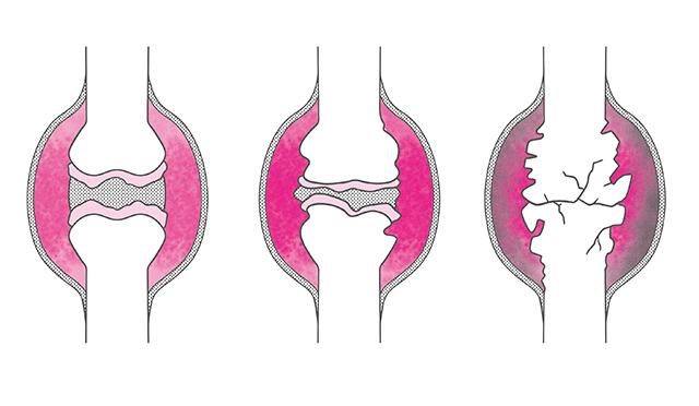 放置しないで! 関節リウマチで「関節の破壊と変形」が起きるメカニズム
