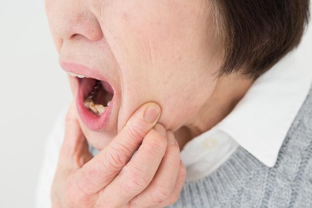 加齢によってできやすい口内炎がある!? カビの一種であるカンジダがもたらす口内炎とは?/口内炎