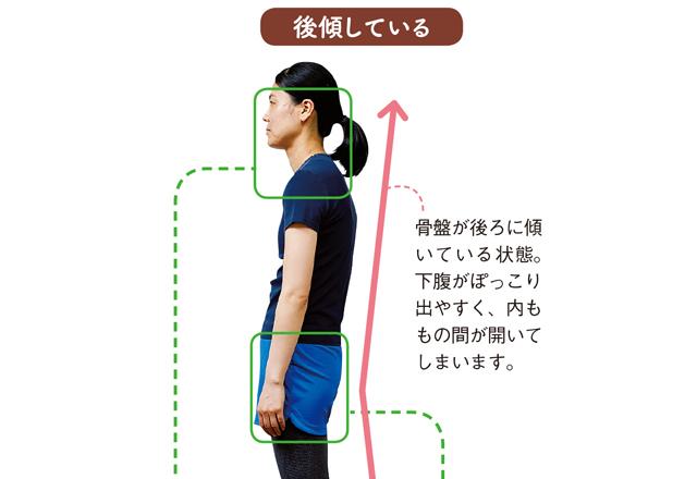 日本人女性の9割は骨盤が後倒!「体のゆがみ」基礎知識
