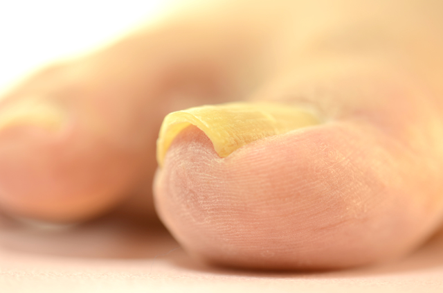 親指に多い「巻き爪」。外反母趾、靴、深爪が主な要因です/足の爪の変形