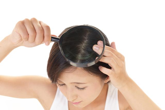 一緒にしてはダメ。薄毛の治療薬は女性と男性で異なります!/抜け毛予防