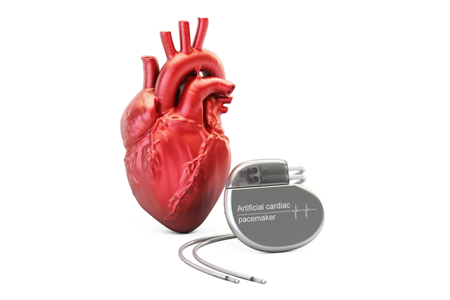 心臓を刺激して拍動を促す。「ペースメーカー」の効果と注意点/やさしい家庭の医学