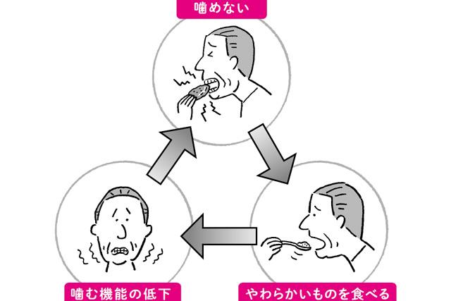 口はその人の健康の通信簿です。「あなたの口の衰え」セルフチェック