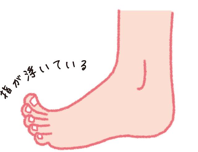 浮き指、浮き上げ指、タコ・うおのめ。女性に多い足の不調/足指力を鍛える(6)