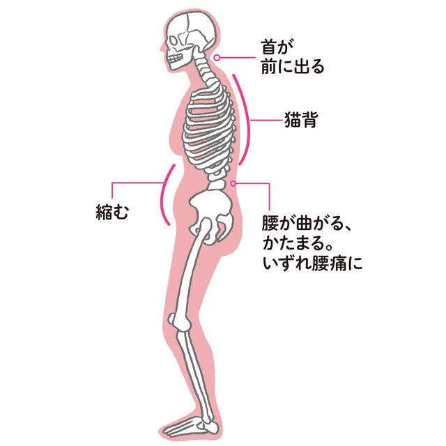 コロナ禍のおうち生活で足腰が弱くなったから? ひざや腰の痛みの原因は「運動不足と姿勢の悪さ」