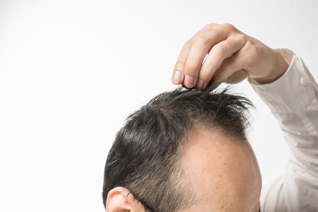 抜け毛が気になる前から知っておきたい! 髪のメカニズム/抜け毛予防