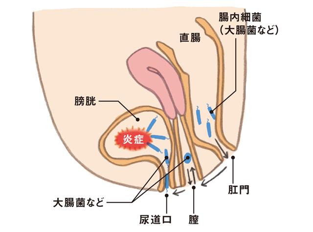 加齢に伴い女性がかかりやすい「膀胱炎」の傾向と対策