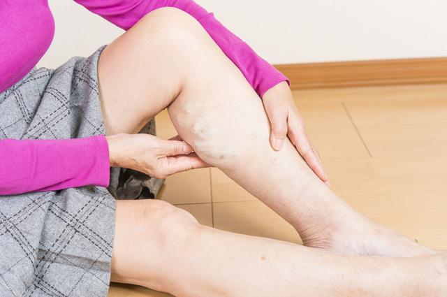 足に謎のボコボコ、青い血管がウネウネ...下肢静脈瘤、なぜ起こる?/下肢静脈瘤の治し方