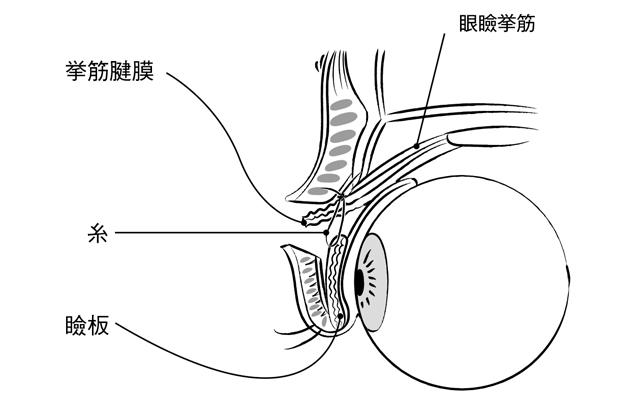 日帰り手術も可能です。まぶたが垂れ下がる「眼瞼下垂」の治療法