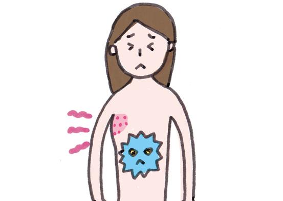 「帯状疱疹」が近年増加しているワケは...⁉ 知っておきたい「ブースター効果」とは