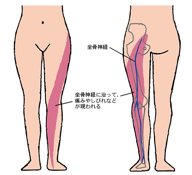 痛みの原因となる坐骨神経って、どこにあるの?/坐骨神経痛