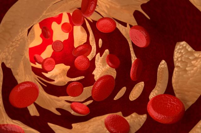 動脈硬化のリスクを予測できる! 「頸動脈超音波検査」とは?/健康診断
