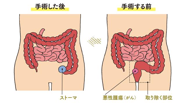 肛門近くのがんは必ず人工肛門になるの?/大腸がんの常識・非常識