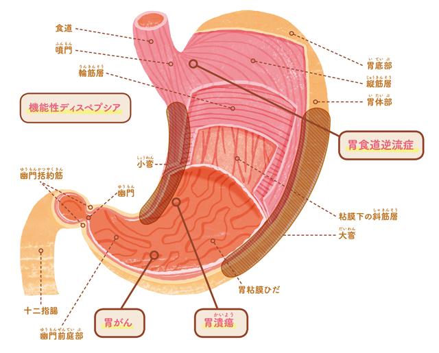 年々増加傾向に?知っておきたい「胃食道逆流症」の基礎知識