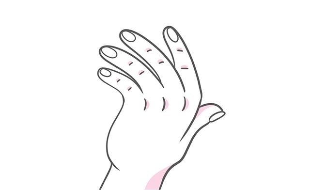 037_手の指に起こる特有の変形_3.jpg
