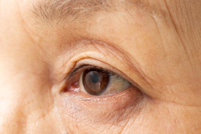 早い人は40代から発症! 上まぶたが垂れ下がる「眼瞼下垂」とは