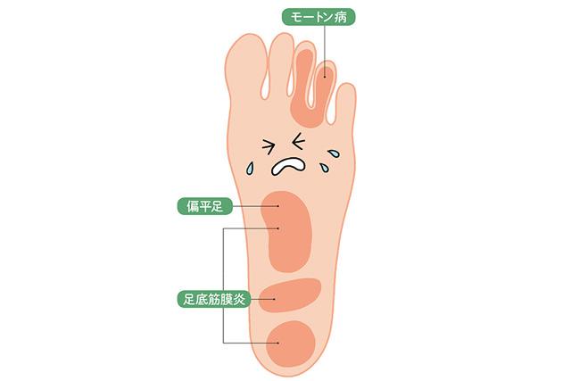 片足で立てない、足が冷える...。それは足裏の筋力が弱っているかも? 症状をチェック!