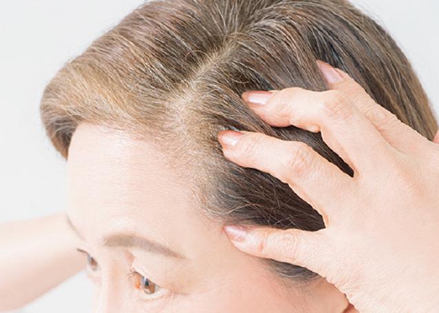 まだ育毛剤だけ? 薄毛予防に最善のマッサージ術を伝授!
