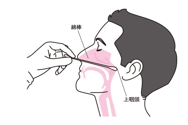 鼻うがい-001-.023-1jpg.jpg