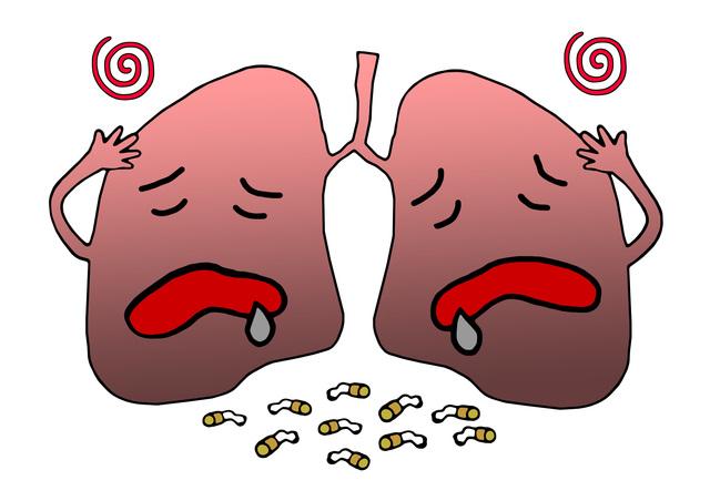 タバコさえなければ半数に減少!? 禁煙で「肺がん」予防/やさしい家庭の医学