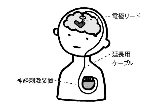 実に患者数は国内に約16万人! パーキンソン病を改善する脳深部刺激療法とは?