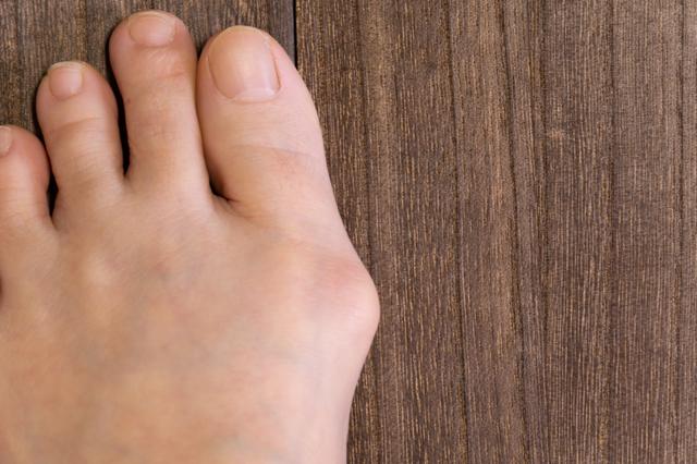 アーチの崩れが招く?足の構造から知る「外反母趾」の仕組み