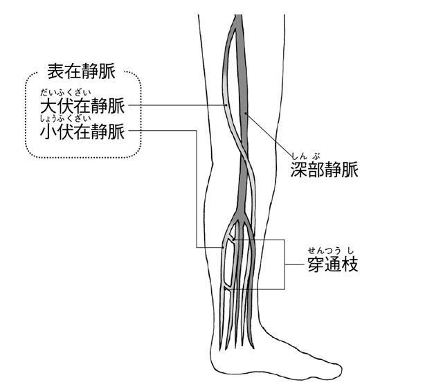 知っていますか?エコノミークラス症候群と下肢静脈瘤の違い