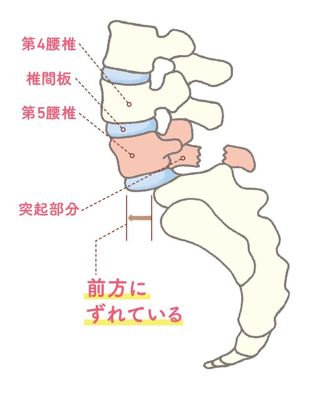運動後に腰痛や足のしびれが生じることも。「腰痛分離症・すべり症」の基礎知識