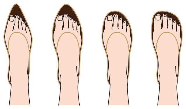 足のタイプに合った正しい靴を選べば爪は変わります/足の爪の変形