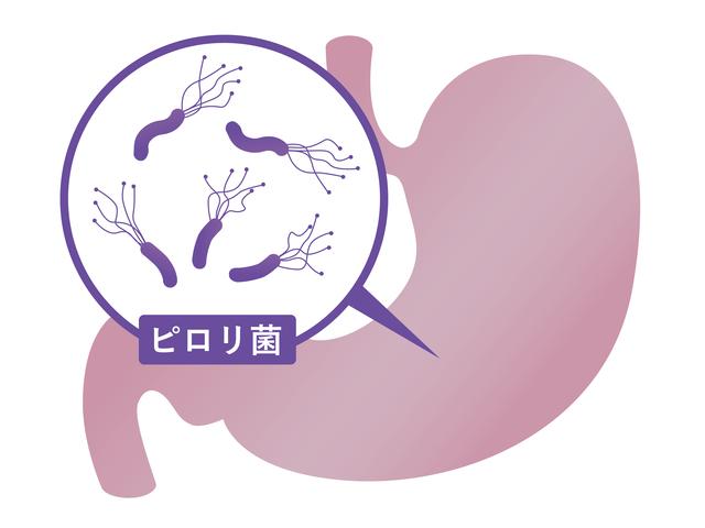 胃がんリスクを軽減!「ピロリ菌除菌」の基礎知識