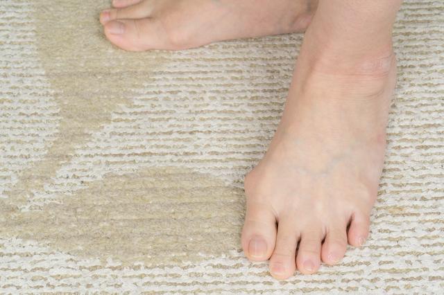 意外と怖い足のトラブル!「外反母趾」を防ぐ3つのポイントとは?
