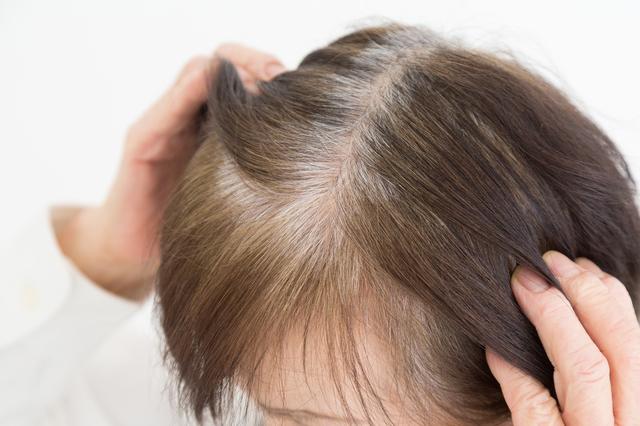 白髪と薄毛の原因としくみ、どう違うの? 薄毛と白髪の関係/抜け毛予防