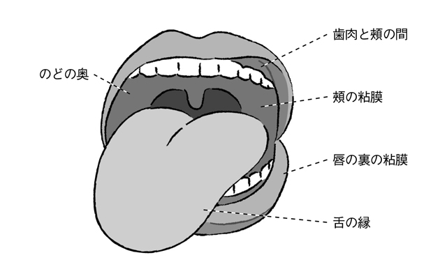 危険な病気を見逃さないで! 舌がんなどの深刻な病気とも間違えやすい「口内炎」とは?