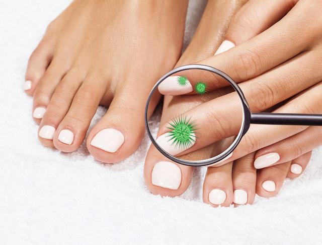 爪は健康のバロメーター。白、黄色や黒、緑色などになったら注意!/足の爪の変形