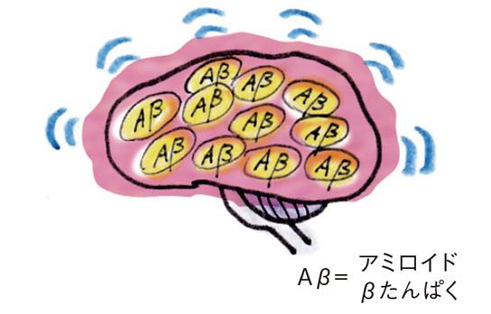 高血糖などで血管に負担がかかると...「脳の老化」が起こる仕組み