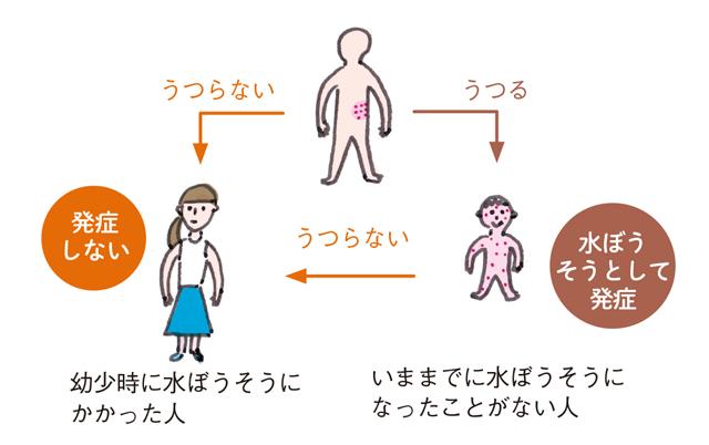 「再発する人」が増えています。医師が教える「帯状疱疹になりやすい人、なりにくい人」