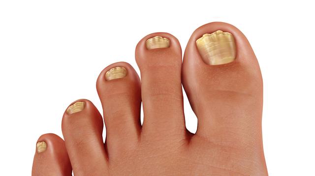 爪が厚くなって歩く時に痛みが...。その症状「肥甲爪」かも!?/足の爪の変形