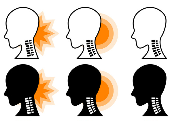 椎間板の老化は20歳から始まる⁉ 椎間板の断裂で発症する「頚椎椎間板ヘルニア」/首の痛み
