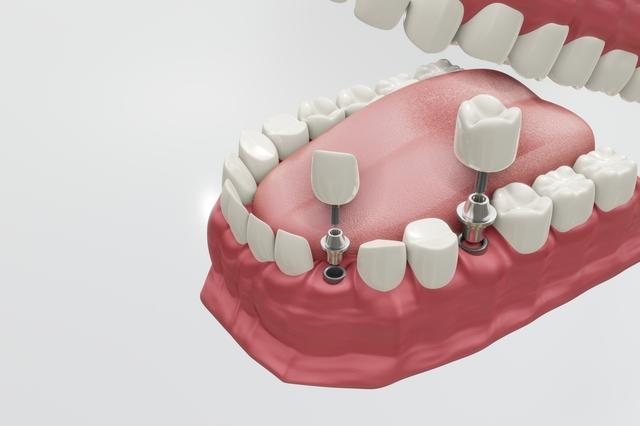 「歯の再生」の研究は進んでいるけど...⁉ インプラントの費用から考える「一本の歯」の価値