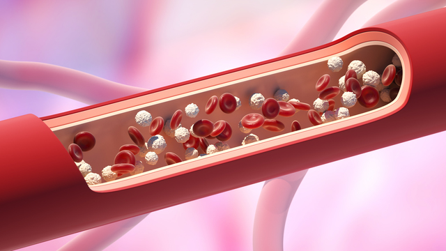 貧血のシニア世代は注意!血液のがん「骨髄異形成症候群」とは?