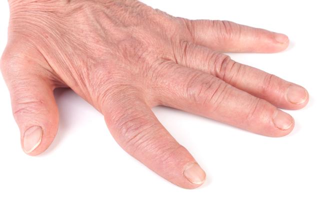 手指などの小さな関節が腫れて痛む。「関節リウマチ」かもしれません