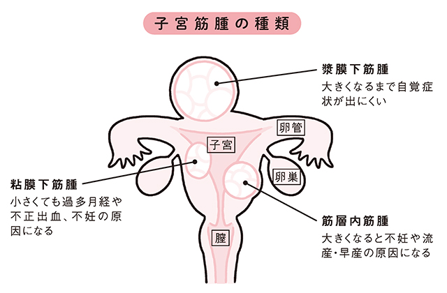 0602_chitsu_fix0123.jpg