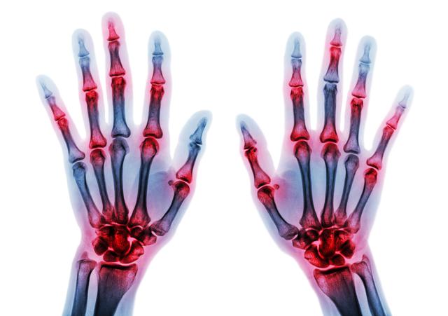 「関節リウマチ」と「変形性関節症」は原因に大きな違いがある!